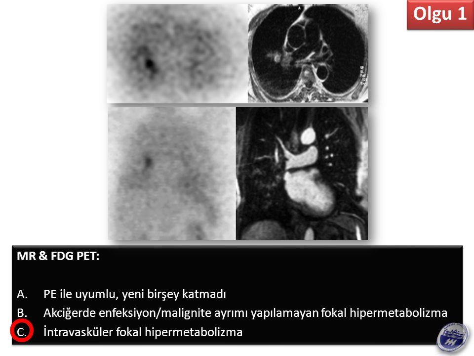 Bulgular Perfüzyon : Sağ akciğerde - özellikle alt lobda – azalmış perfüzyon Ventilasyon: N MR: Sağ hiler alanda, sağ pulmoner arter bifurkasyonda, dolum defektine neden olan kötü sınırlı kitle, periferal embolik hastalık YOK PET: kitlede hipermetabolizma Ayırıcı Tanı V/P mismatch en sık nedeni PE, ancak Pulmoner Arter de obstrüksiyona neden olan herhangi bir şey de buna neden olabilir – Bronkojenik Ca, Lenfoma, Metastatik Hast.