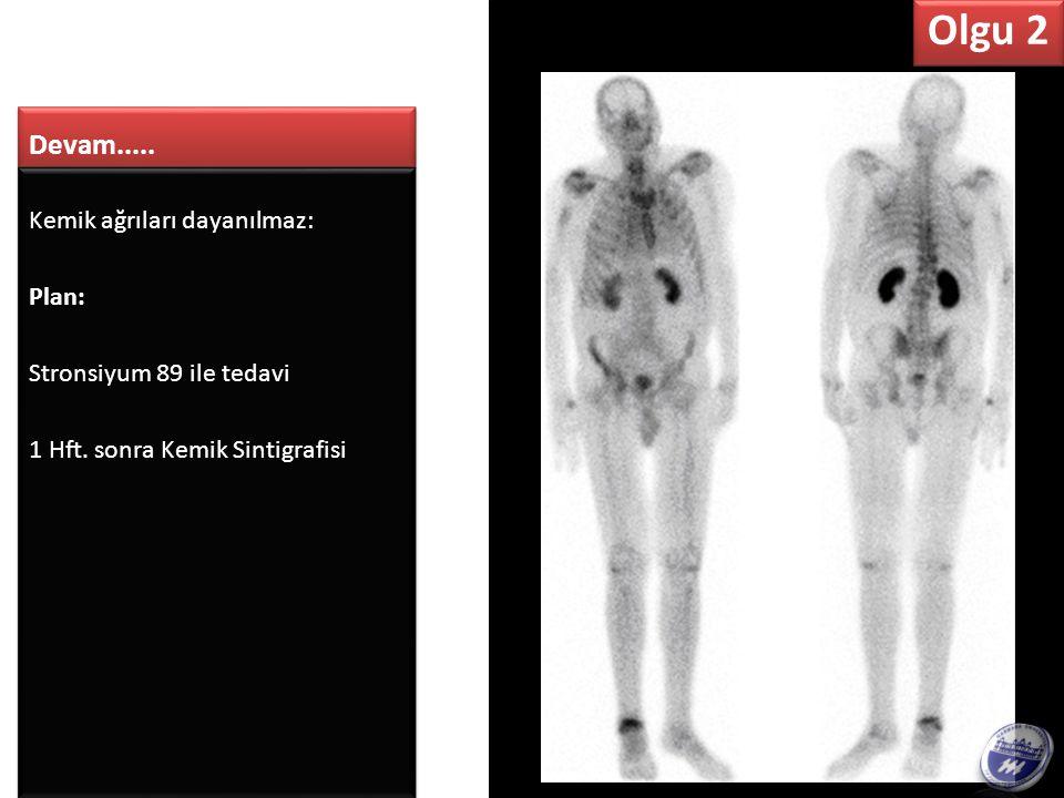 PET ve Kemik Sint.görüntülerine göre, iskelet bulgularını en iyi açıklayan hangisidir.