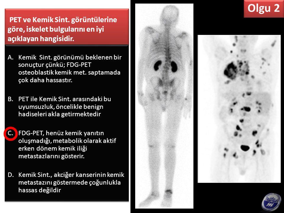 Tiroid Sint.ve PET'e göre mediastinal kitle için en doğru olan hangisidir .