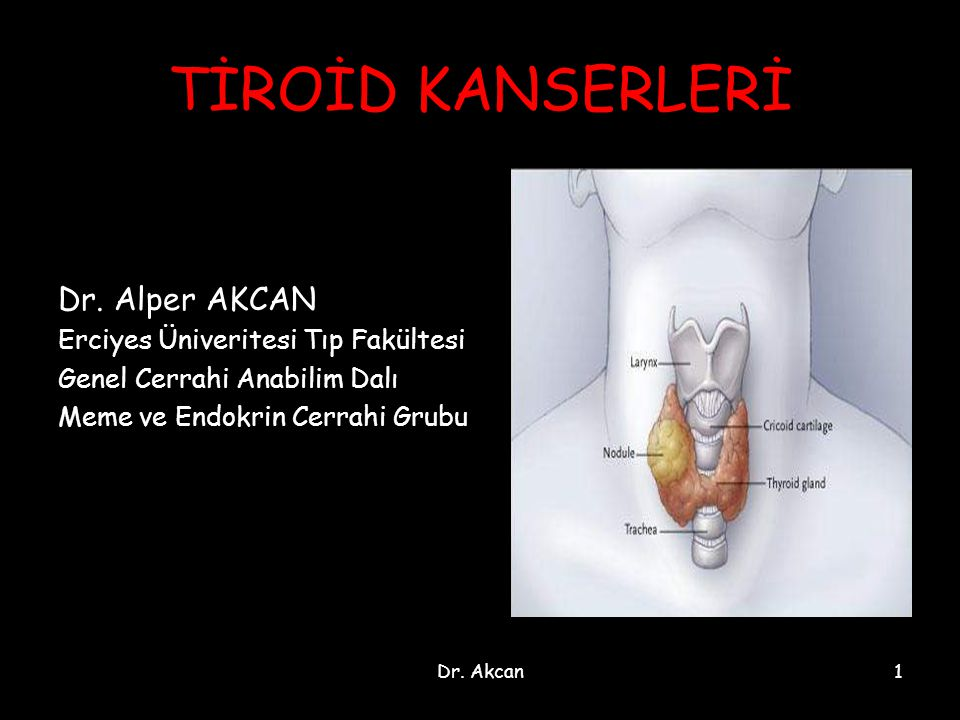 Dr. Akcan1 TİROİD KANSERLERİ Dr. Alper AKCAN Erciyes Üniveritesi Tıp Fakültesi Genel Cerrahi Anabilim Dalı Meme ve Endokrin Cerrahi Grubu