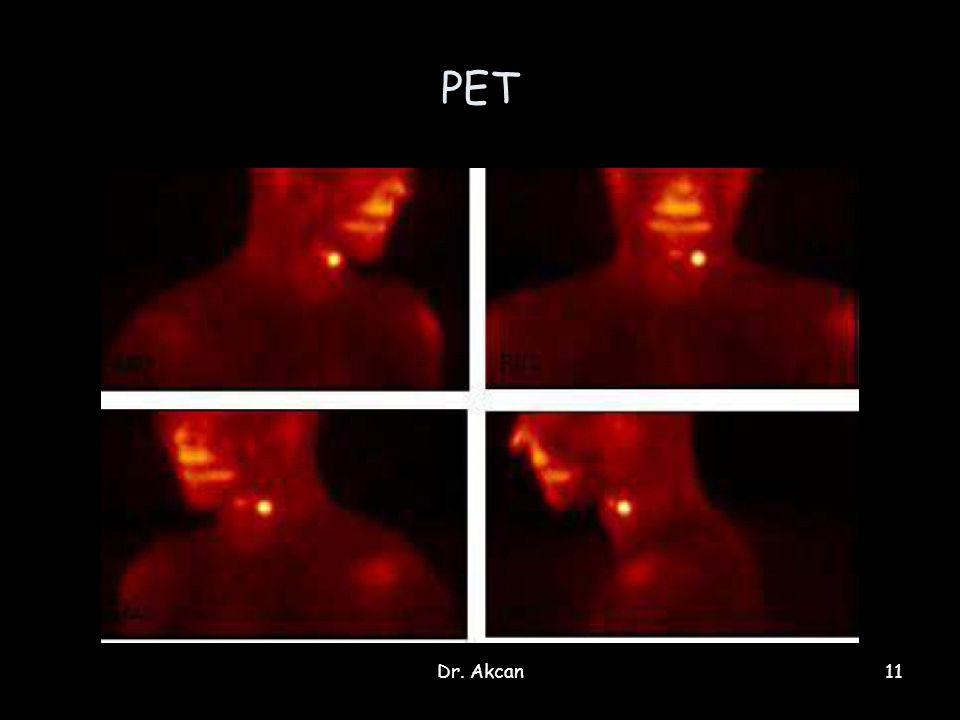 Dr. Akcan11 PET