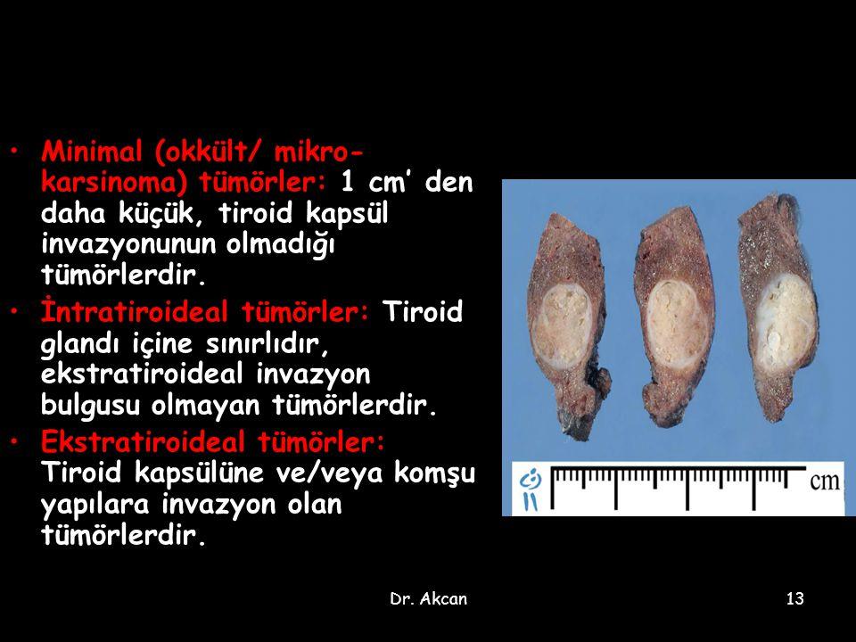 Dr. Akcan13 Minimal (okkült/ mikro- karsinoma) tümörler: 1 cm' den daha küçük, tiroid kapsül invazyonunun olmadığı tümörlerdir. İntratiroideal tümörle