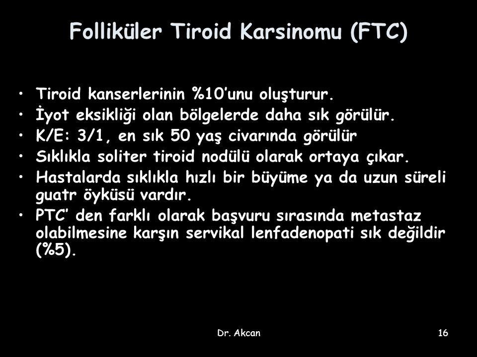 Dr. Akcan16 Folliküler Tiroid Karsinomu (FTC) Tiroid kanserlerinin %10'unu oluşturur. İyot eksikliği olan bölgelerde daha sık görülür. K/E: 3/1, en sı