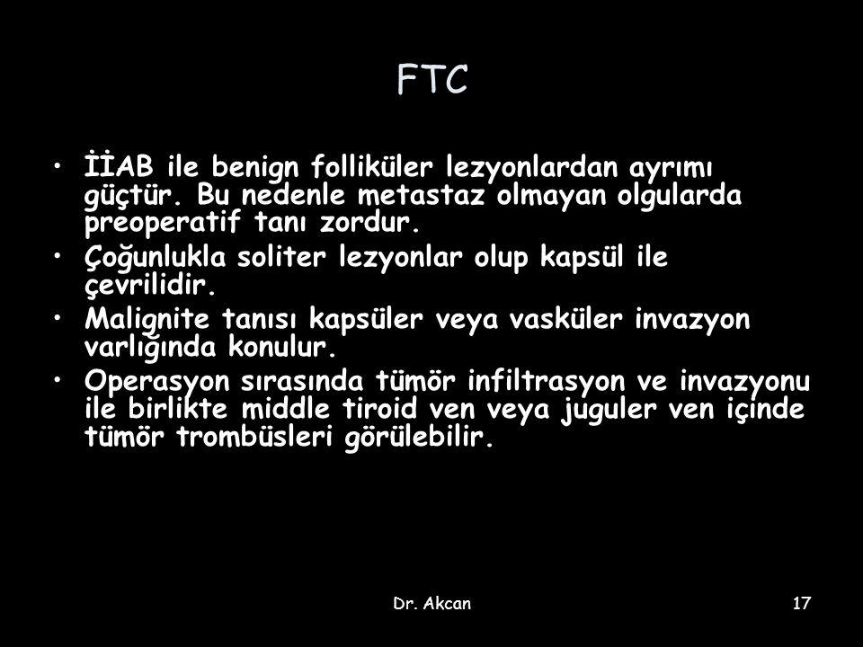 Dr. Akcan17 FTC İİAB ile benign folliküler lezyonlardan ayrımı güçtür. Bu nedenle metastaz olmayan olgularda preoperatif tanı zordur. Çoğunlukla solit