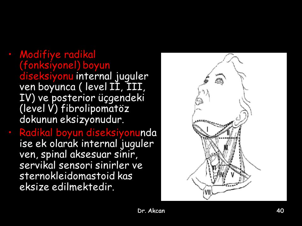 Dr. Akcan40 Modifiye radikal (fonksiyonel) boyun diseksiyonu internal juguler ven boyunca ( level II, III, IV) ve posterior üçgendeki (level V) fibrol