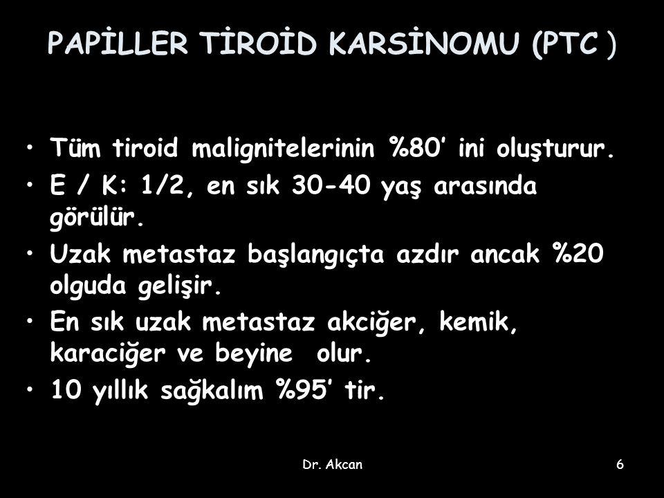 Dr. Akcan6 PAPİLLER TİROİD KARSİNOMU (PTC ) Tüm tiroid malignitelerinin %80' ini oluşturur. E / K: 1/2, en sık 30-40 yaş arasında görülür. Uzak metast