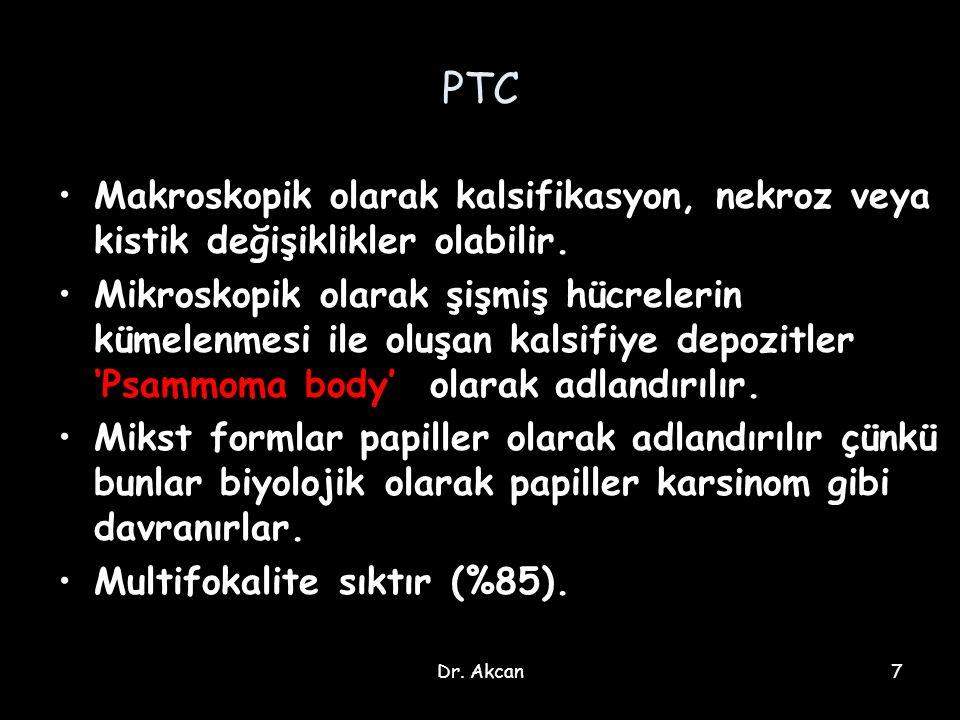Dr.Akcan38 Anaplastik tiroid karsinomu (ATC) Tüm tiroid malignitelerinin %1' dir.