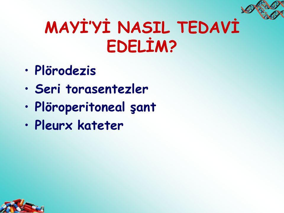 MAYİ'Yİ NASIL TEDAVİ EDELİM? Plörodezis Seri torasentezler Plöroperitoneal şant Pleurx kateter