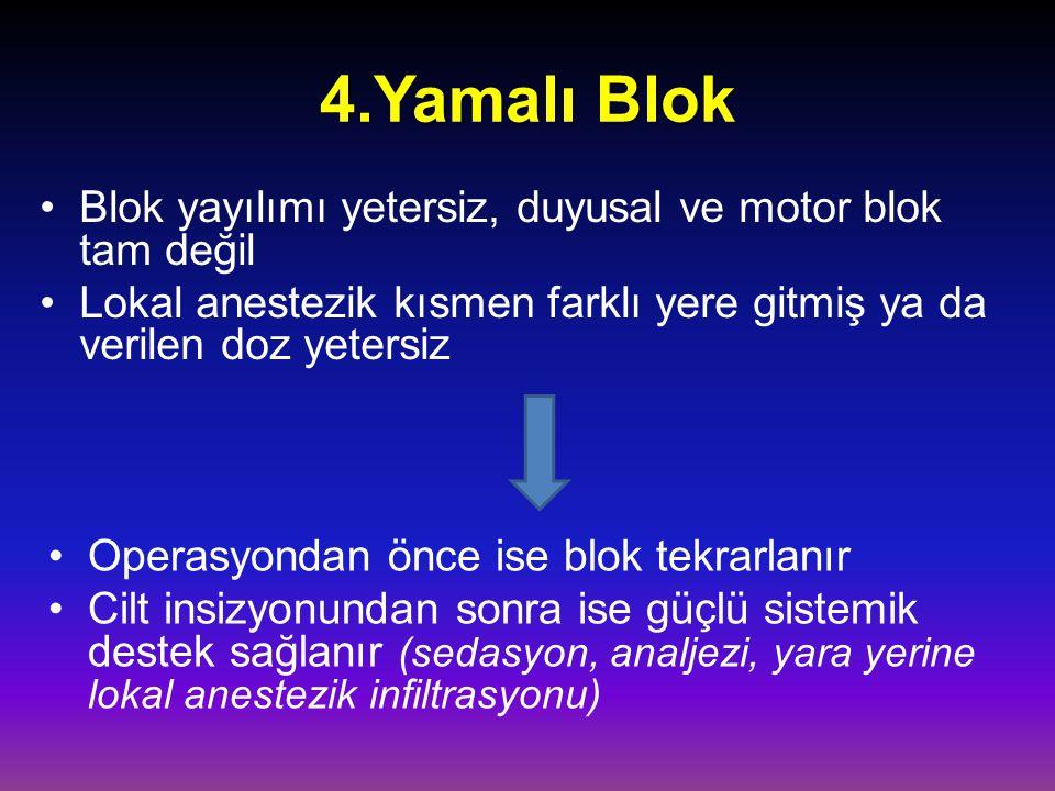 4.Yamalı Blok Blok yayılımı yetersiz, duyusal ve motor blok tam değil Lokal anestezik kısmen farklı yere gitmiş ya da verilen doz yetersiz Operasyonda