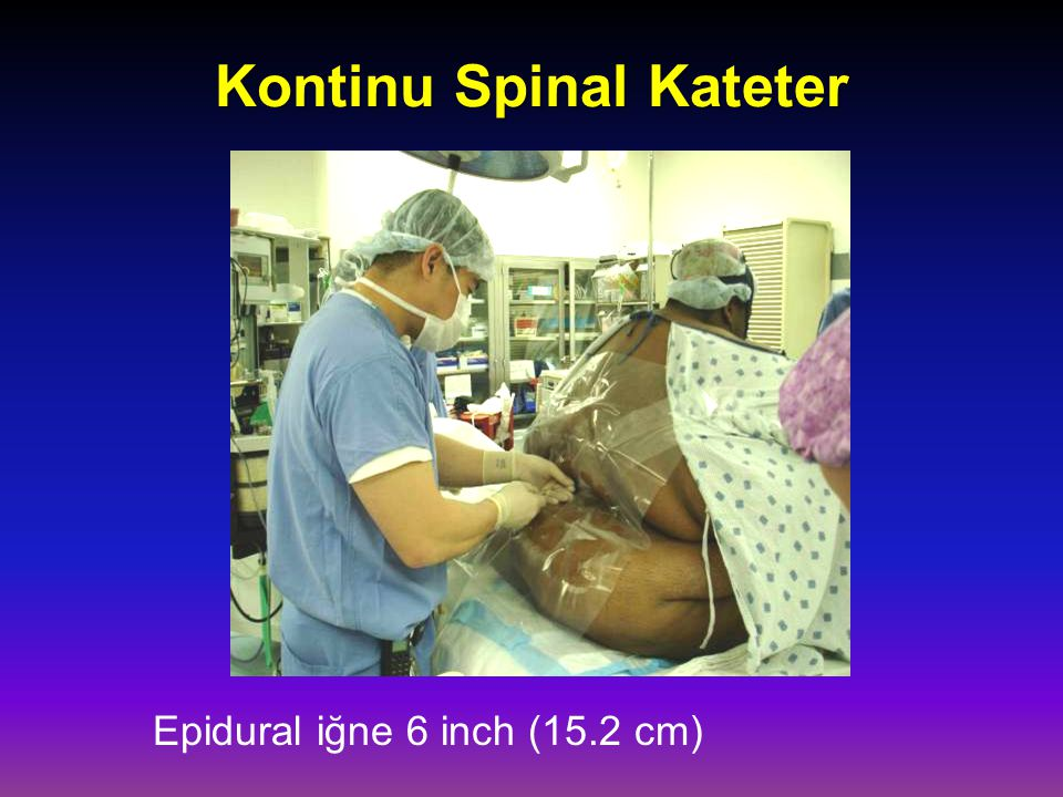Kontinu Spinal Kateter Epidural iğne 6 inch (15.2 cm)