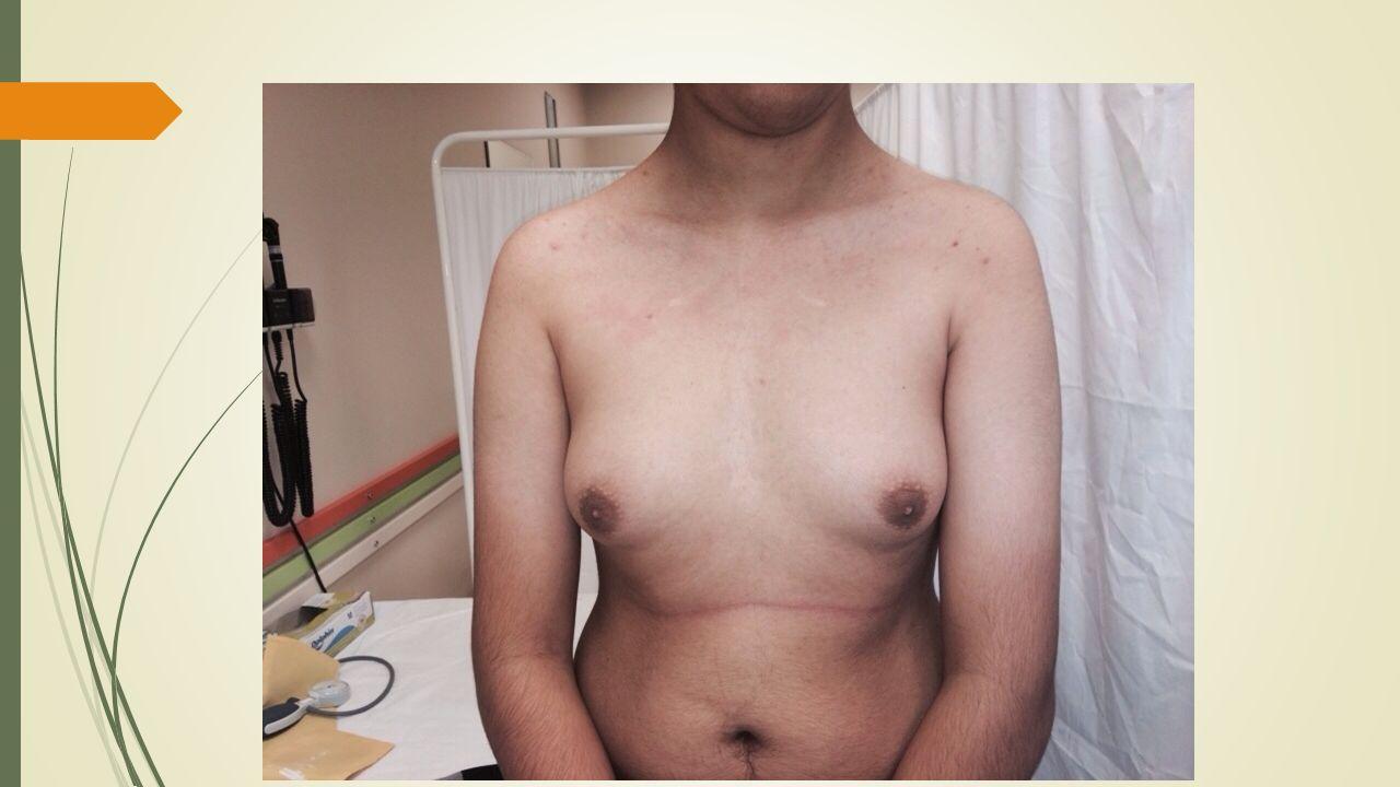 Patolojik Bulgular:  İnmemiş testis öyküsü  Jinekomasti  Gecikmiş puberte (testis volümü 2cc )  Kadın tipi yağlanma  Günlük hayatını etkileyen asosyal kişilik özellikleri