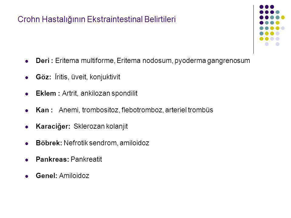 Crohn Hastalığının Ekstraintestinal Belirtileri Deri : Eritema multiforme, Eritema nodosum, pyoderma gangrenosum Göz: İritis, üveit, konjuktivit Eklem