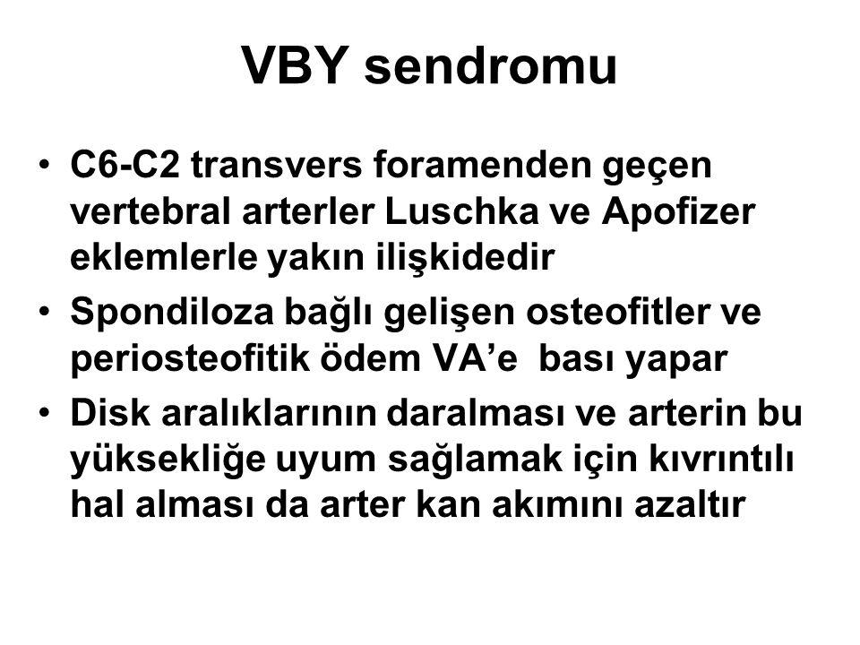 VBY sendromu C6-C2 transvers foramenden geçen vertebral arterler Luschka ve Apofizer eklemlerle yakın ilişkidedir Spondiloza bağlı gelişen osteofitler