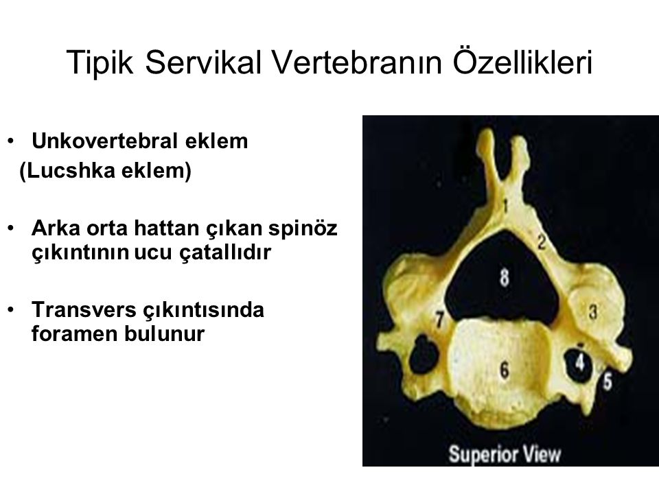 Tipik Servikal Vertebranın Özellikleri Unkovertebral eklem (Lucshka eklem) Arka orta hattan çıkan spinöz çıkıntının ucu çatallıdır Transvers çıkıntısı