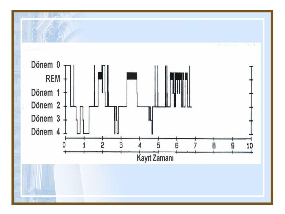 İnsomniada polisomnografi çalışma endikasyonları Klinik değerlendirmede düşünülen: Periyodik bacak hareketleri bozukluğu Uykuda solunum bozukluğu Klinik tanının kuşkulu olduğu: Tedavinin başarısız olduğu olgular Uykuda şiddet davranışları Dirençli sirkadiyen ritim bozuklukları