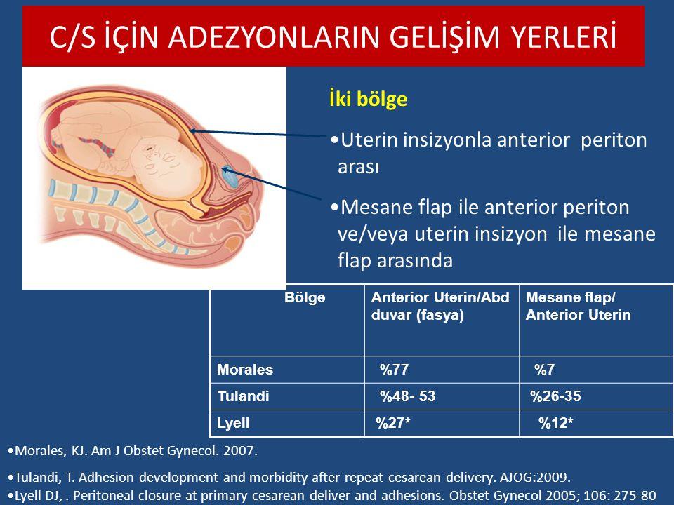 C/S İÇİN ADEZYONLARIN GELİŞİM YERLERİ İki bölge Uterin insizyonla anterior periton arası Mesane flap ile anterior periton ve/veya uterin insizyon ile