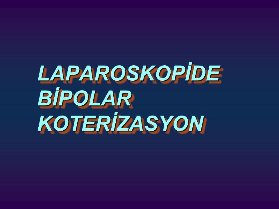 LAPAROSKOPİDE BİPOLAR KOTERİZASYON