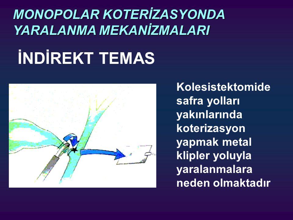 İNDİREKT TEMAS Kolesistektomide safra yolları yakınlarında koterizasyon yapmak metal klipler yoluyla yaralanmalara neden olmaktadır MONOPOLAR KOTERİZA