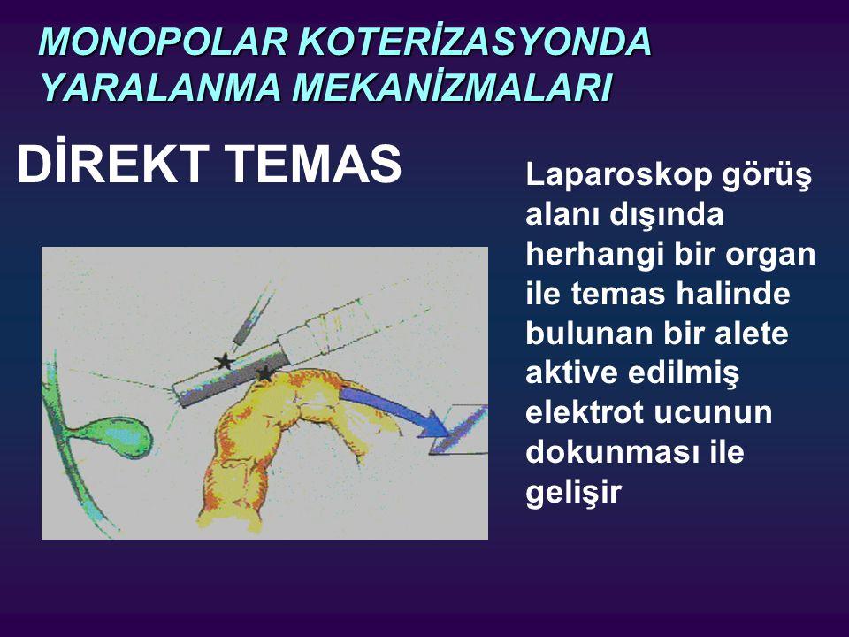 MONOPOLAR KOTERİZASYONDA YARALANMA MEKANİZMALARI DİREKT TEMAS Laparoskop görüş alanı dışında herhangi bir organ ile temas halinde bulunan bir alete ak