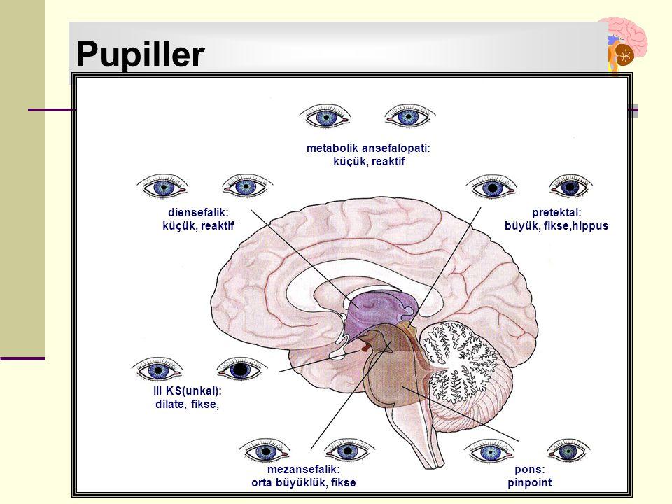 İstanbul, Kasım 2011 Pupiller metabolik ansefalopati: küçük, reaktif diensefalik: küçük, reaktif pretektal: büyük, fikse,hippus III KS(unkal): dilate,