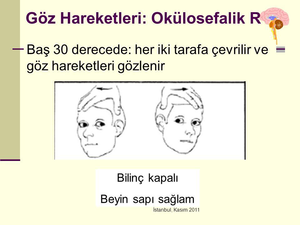 İstanbul, Kasım 2011 Göz Hareketleri: Okülosefalik R Baş 30 derecede: her iki tarafa çevrilir ve göz hareketleri gözlenir Bilinç kapalı Beyin sapı sağ