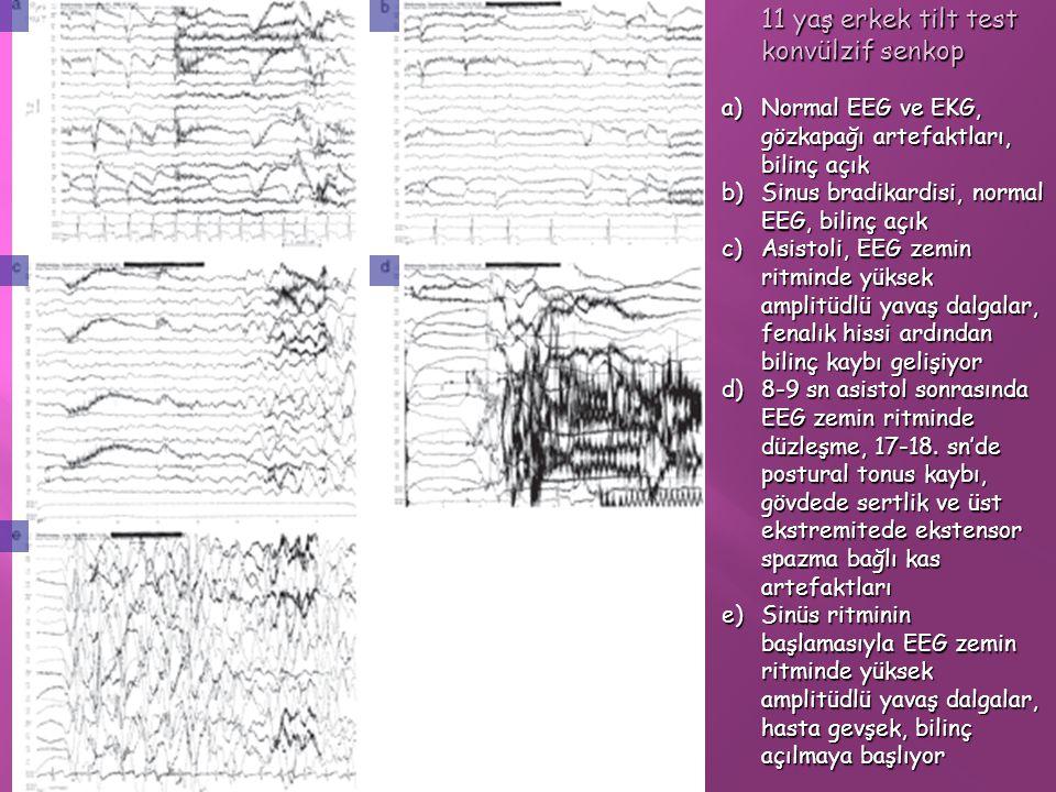 11 yaş erkek tilt test konvülzif senkop a)Normal EEG ve EKG, gözkapağı artefaktları, bilinç açık b)Sinus bradikardisi, normal EEG, bilinç açık c)Asist