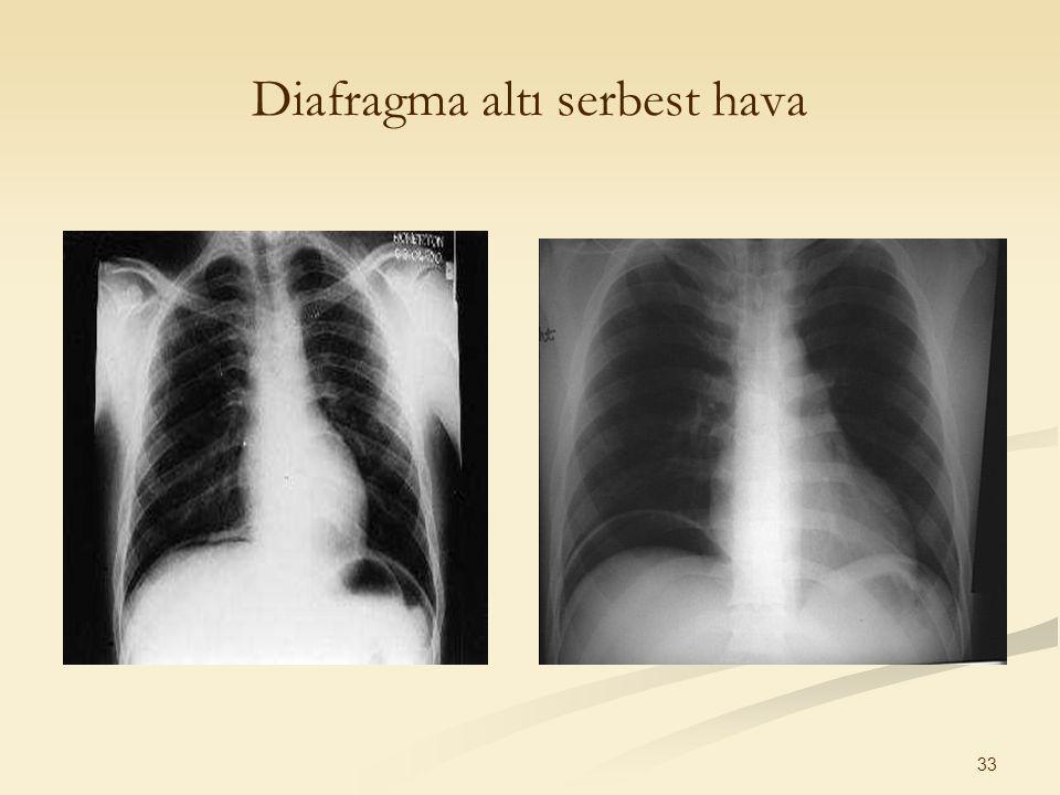 33 Diafragma altı serbest hava