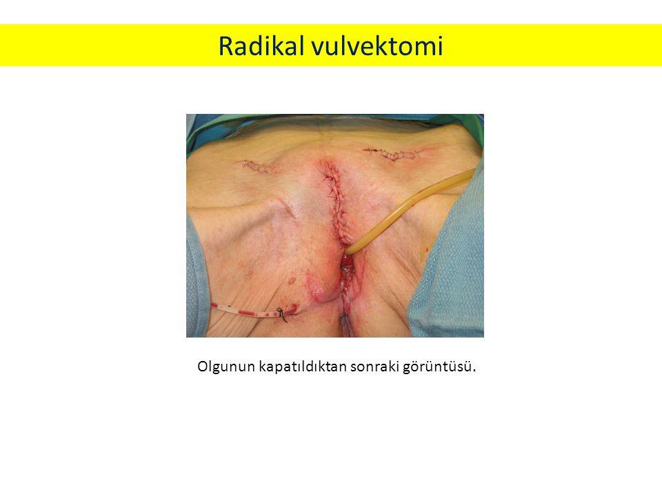 Olgunun kapatıldıktan sonraki görüntüsü. Radikal vulvektomi