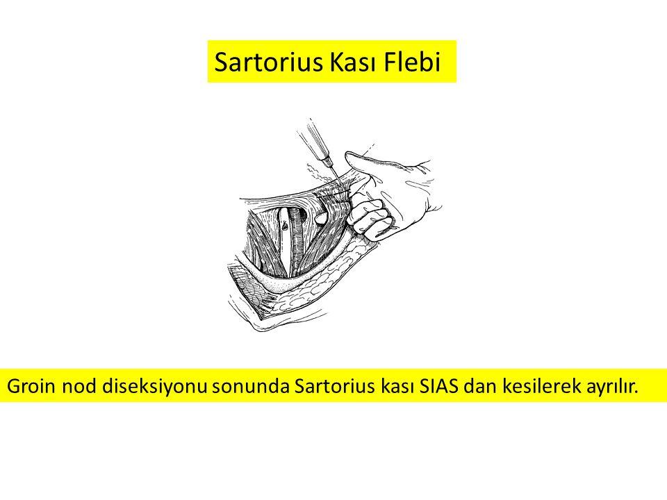 Groin nod diseksiyonu sonunda Sartorius kası SIAS dan kesilerek ayrılır. Sartorius Kası Flebi