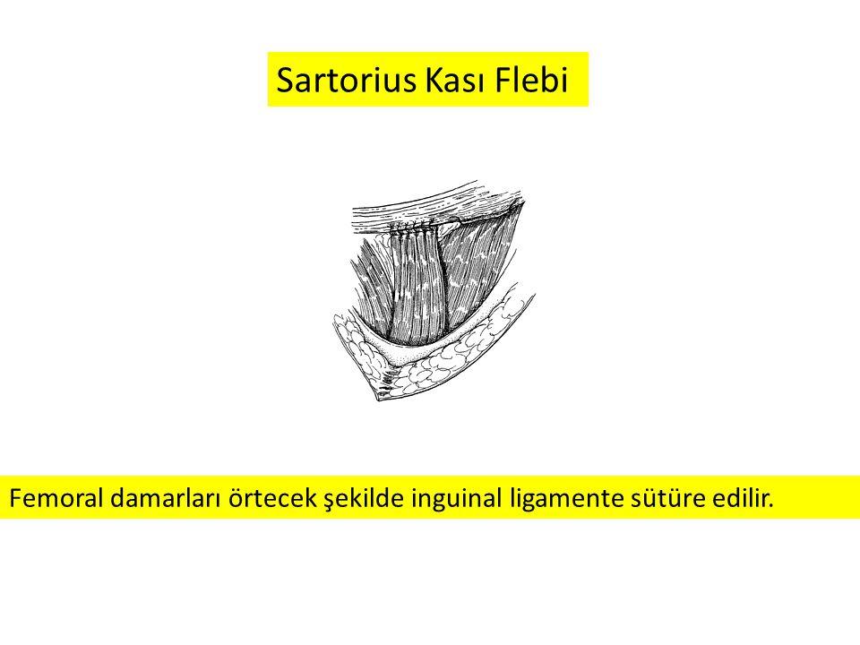 Femoral damarları örtecek şekilde inguinal ligamente sütüre edilir. Sartorius Kası Flebi