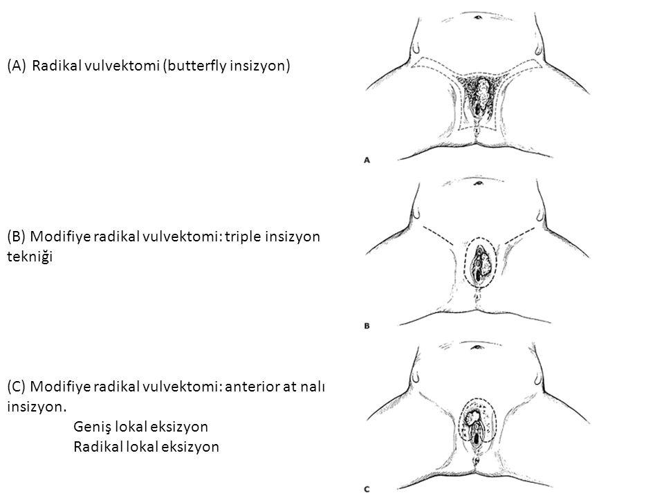 (A)Radikal vulvektomi (butterfly insizyon) (B) Modifiye radikal vulvektomi: triple insizyon tekniği (C) Modifiye radikal vulvektomi: anterior at nalı