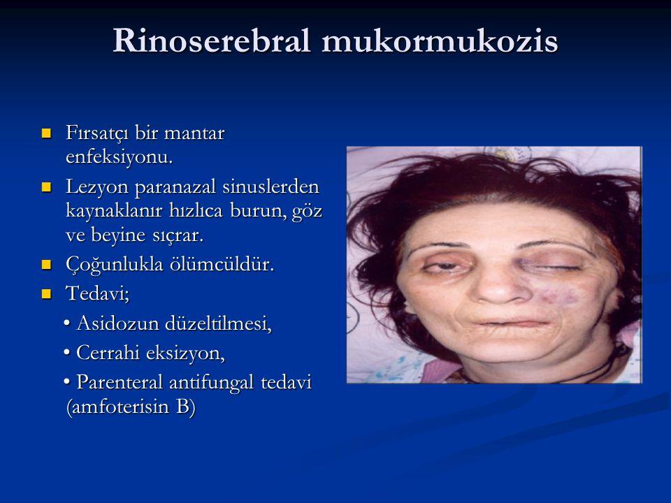 Rinoserebral mukormukozis Fırsatçı bir mantar enfeksiyonu.