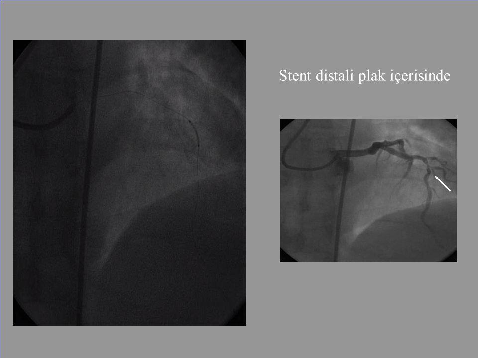 Stent distali plak içerisinde