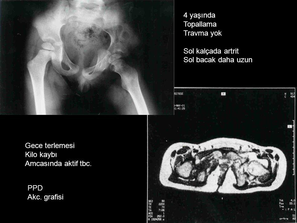 4 yaşında Topallama Travma yok Sol kalçada artrit Sol bacak daha uzun Gece terlemesi Kilo kaybı Amcasında aktif tbc. PPD Akc. grafisi