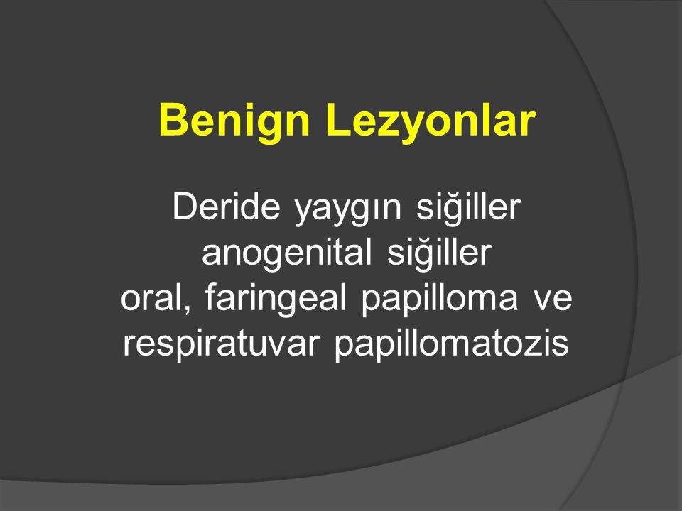 Benign Lezyonlar Deride yaygın siğiller anogenital siğiller oral, faringeal papilloma ve respiratuvar papillomatozis