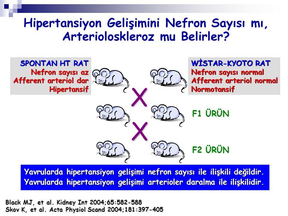 Hipertansiyon Gelişimini Nefron Sayısı mı, Arterioloskleroz mu Belirler? SPONTAN HT RAT Nefron sayısı az Afferent arteriol dar Hipertansif WİSTAR-KYOT