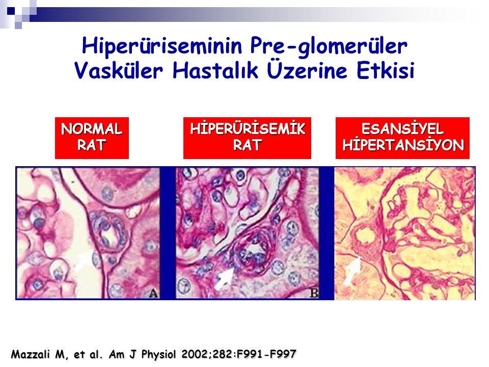 NORMALRATHİPERÜRİSEMİKRATESANSİYELHİPERTANSİYON Mazzali M, et al. Am J Physiol 2002;282:F991-F997 Hiperüriseminin Pre-glomerüler Vasküler Hastalık Üze