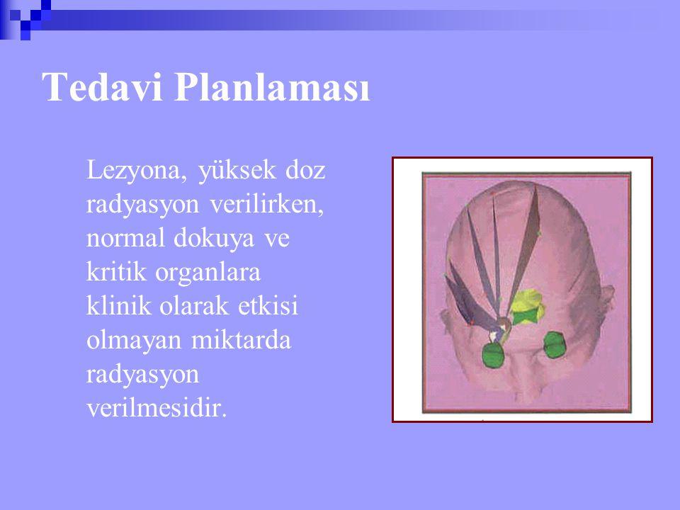 Tedavi Planlaması Lezyona, yüksek doz radyasyon verilirken, normal dokuya ve kritik organlara klinik olarak etkisi olmayan miktarda radyasyon verilmes