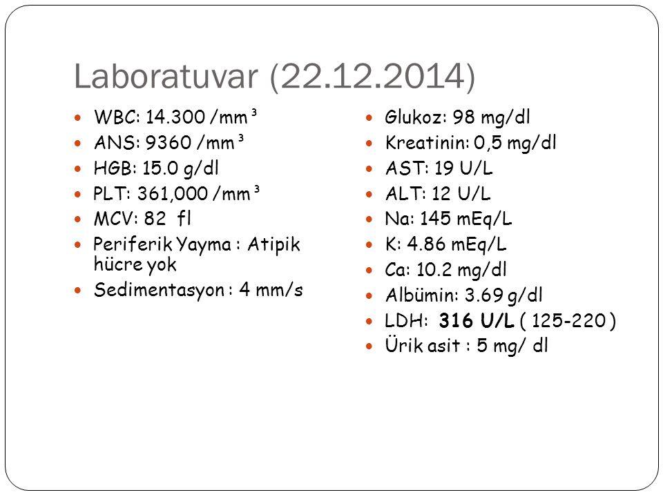 Laboratuvar (22.12.2014) WBC: 14.300 /mm³ ANS: 9360 /mm³ HGB: 15.0 g/dl PLT: 361,000 /mm³ MCV: 82 fl Periferik Yayma : Atipik hücre yok Sedimentasyon