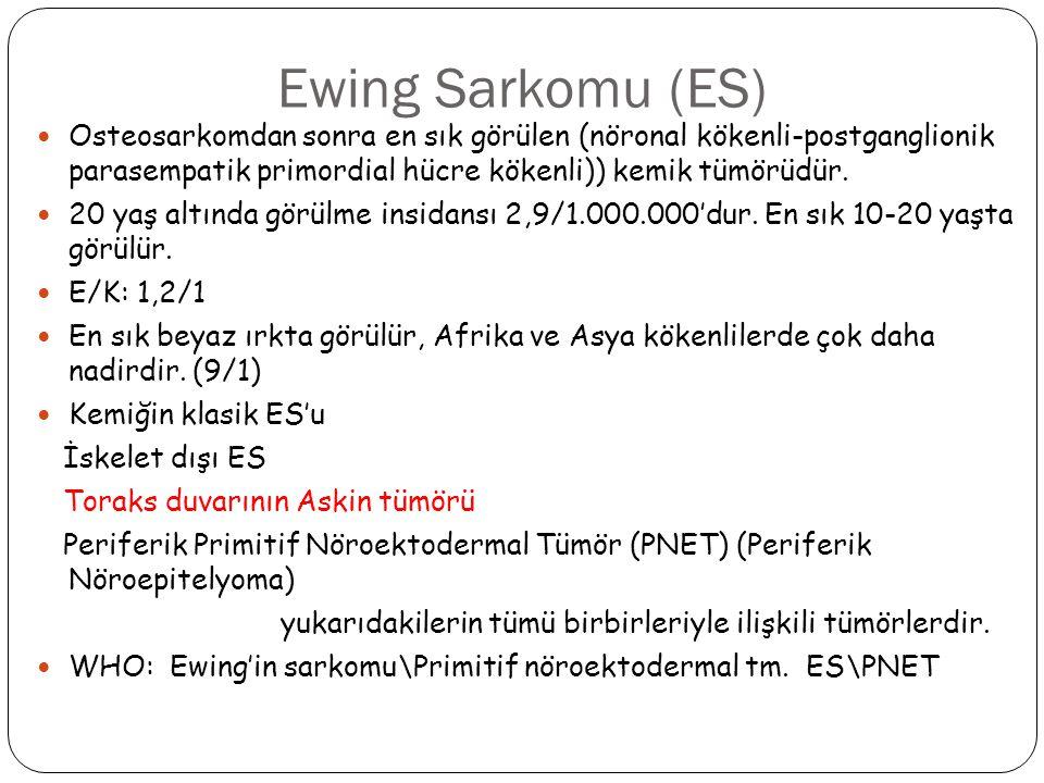 Ewing Sarkomu (ES) Osteosarkomdan sonra en sık görülen (nöronal kökenli-postganglionik parasempatik primordial hücre kökenli)) kemik tümörüdür. 20 yaş
