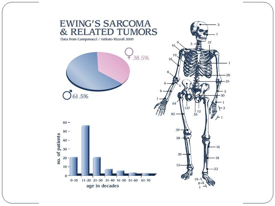 Ewing Tümörleri Ailesi Patognomonik ve diagnostik genetik değişiklik Çoğunda benzer kromozomal translokasyon mevcuttur.