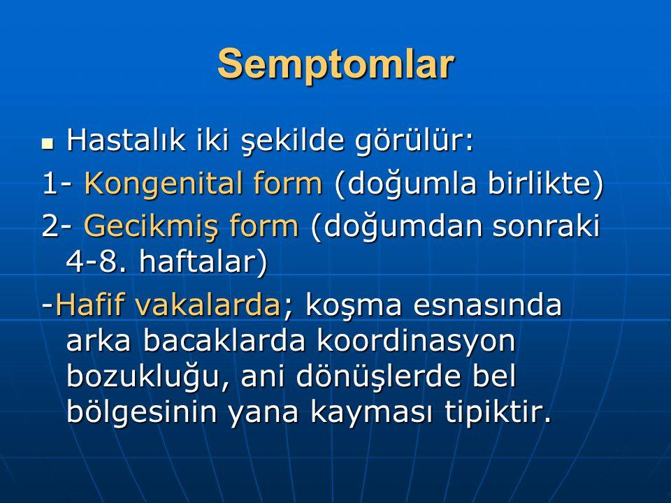 Semptomlar Hastalık iki şekilde görülür: Hastalık iki şekilde görülür: 1- Kongenital form (doğumla birlikte) 2- Gecikmiş form (doğumdan sonraki 4-8.
