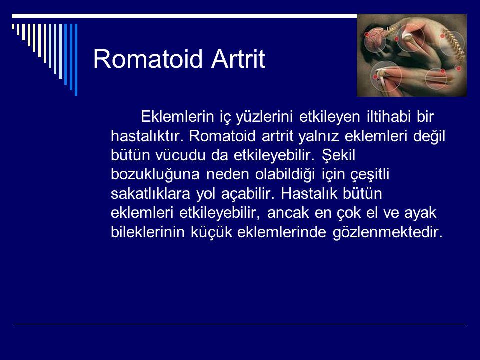 Romatoid Artrit Eklemlerin iç yüzlerini etkileyen iltihabi bir hastalıktır. Romatoid artrit yalnız eklemleri değil bütün vücudu da etkileyebilir. Şeki