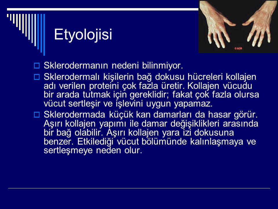 Etyolojisi  Sklerodermanın nedeni bilinmiyor.  Sklerodermalı kişilerin bağ dokusu hücreleri kollajen adı verilen proteini çok fazla üretir. Kollajen