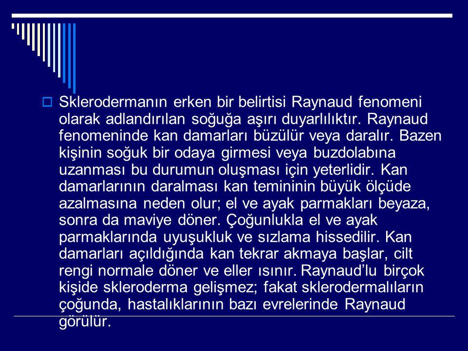  Sklerodermanın erken bir belirtisi Raynaud fenomeni olarak adlandırılan soğuğa aşırı duyarlılıktır. Raynaud fenomeninde kan damarları büzülür veya d