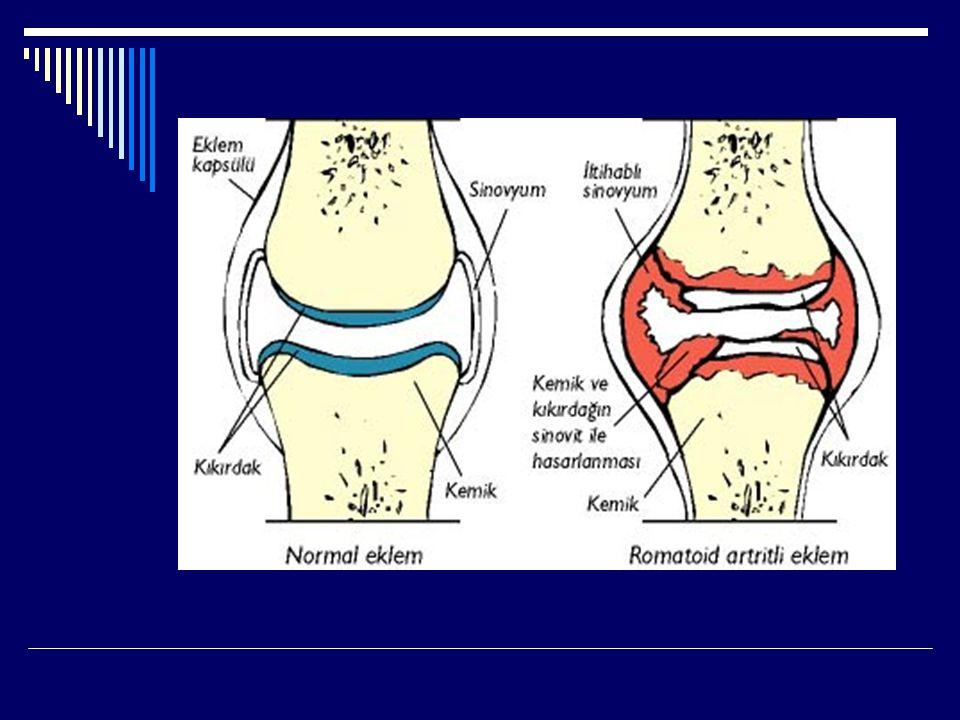  SLE'li hastaların yaklaşık %90'ında ilk semptom artrit (eklem iltihabı) veya artralji (eklem ağrısı) dır.