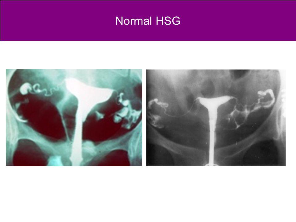 Normal HSG
