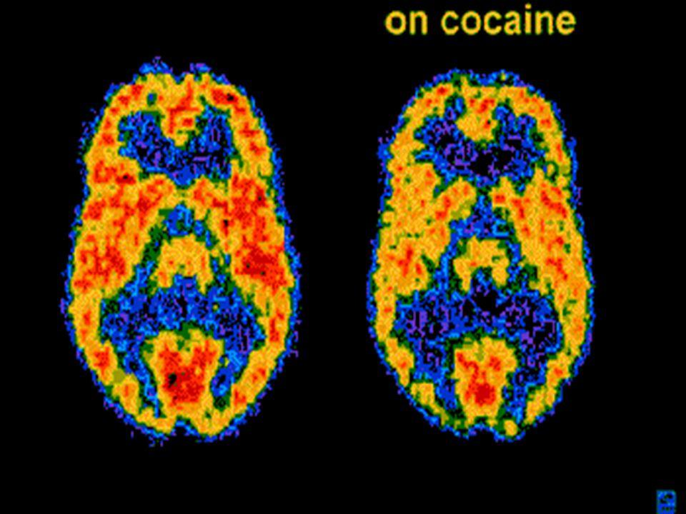 GİS ; Crack ve IV kokain kullanımında; Crack ve IV kokain kullanımında; Kusma Kusma Barsak iskemisi Barsak iskemisi Barsak nekrozu ve ülserler Barsak nekrozu ve ülserler GİS kanalında rüptüre olan kokain paketleri şiddetli hasara yol açabilir.
