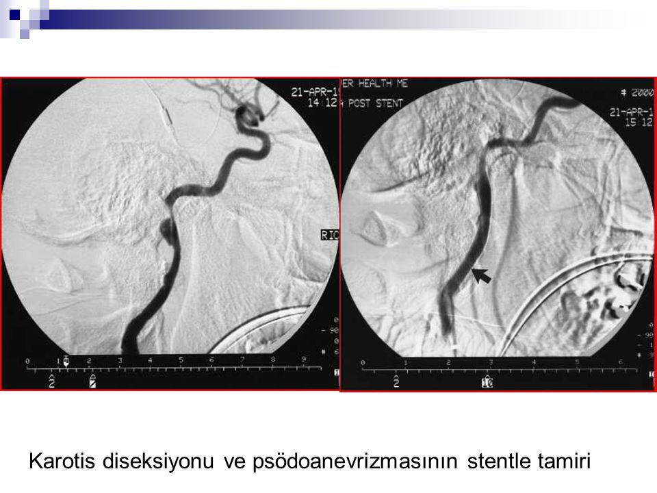 Karotis diseksiyonu ve psödoanevrizmasının stentle tamiri