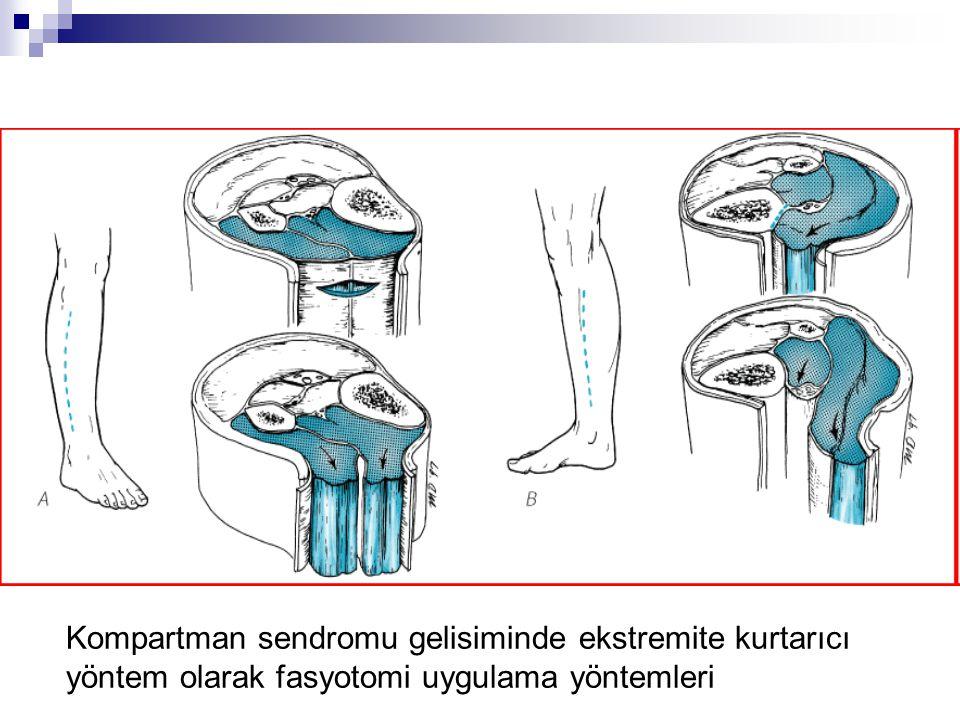 Kompartman sendromu gelisiminde ekstremite kurtarıcı yöntem olarak fasyotomi uygulama yöntemleri